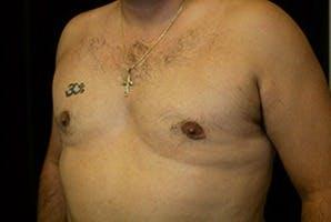 Gynecomastia Gallery - Patient 39248301 - Image 6