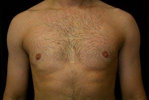 Gynecomastia Gallery - Patient 39248306 - Image 2