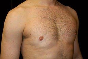 Gynecomastia Gallery - Patient 39248306 - Image 4