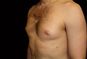 Gynecomastia Gallery - Patient 39248306 - Image 5