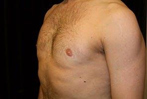 Gynecomastia Gallery - Patient 39248306 - Image 6