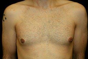 Gynecomastia Gallery - Patient 39248307 - Image 1