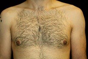 Gynecomastia Gallery - Patient 39248307 - Image 2