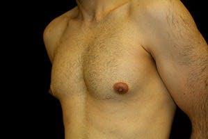 Gynecomastia Gallery - Patient 39248307 - Image 5