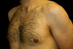 Gynecomastia Gallery - Patient 39248307 - Image 6