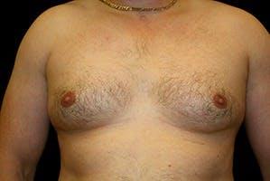 Gynecomastia Gallery - Patient 39248308 - Image 1