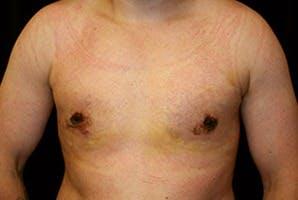 Gynecomastia Gallery - Patient 39248308 - Image 2