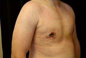 Gynecomastia Gallery - Patient 39248308 - Image 4