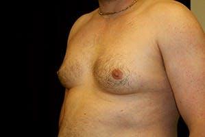Gynecomastia Gallery - Patient 39248308 - Image 5