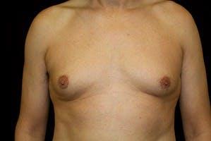 Gynecomastia Gallery - Patient 39248309 - Image 1