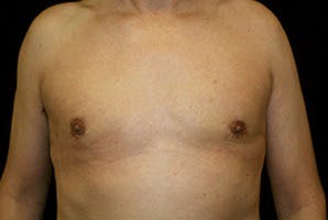 Gynecomastia Gallery - Patient 39248309 - Image 2