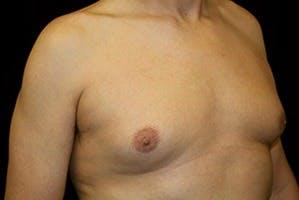 Gynecomastia Gallery - Patient 39248309 - Image 3