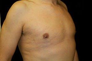 Gynecomastia Gallery - Patient 39248309 - Image 4