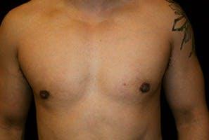 Gynecomastia Gallery - Patient 39248311 - Image 2