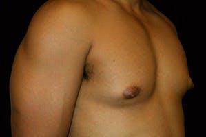 Gynecomastia Gallery - Patient 39248311 - Image 3