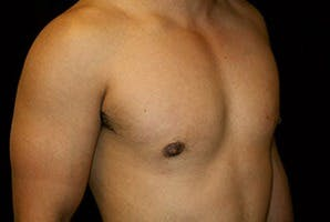 Gynecomastia Gallery - Patient 39248311 - Image 4