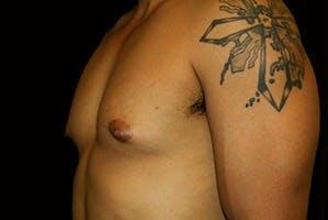 Gynecomastia Gallery - Patient 39248311 - Image 5