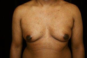 Gynecomastia Gallery - Patient 39248312 - Image 1