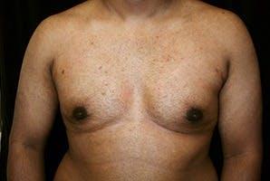 Gynecomastia Gallery - Patient 39248312 - Image 2