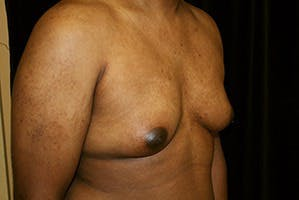 Gynecomastia Gallery - Patient 39248312 - Image 3