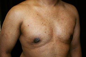 Gynecomastia Gallery - Patient 39248312 - Image 4