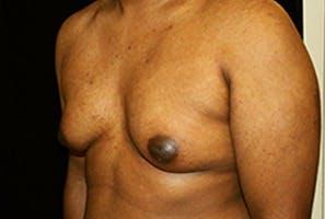 Gynecomastia Gallery - Patient 39248312 - Image 5