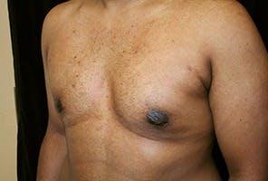 Gynecomastia Gallery - Patient 39248312 - Image 6