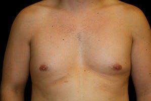Gynecomastia Gallery - Patient 39248313 - Image 1