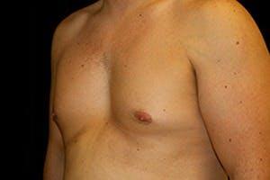 Gynecomastia Gallery - Patient 39248313 - Image 5