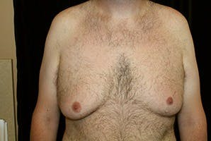 Gynecomastia Gallery - Patient 39248315 - Image 1