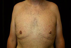 Gynecomastia Gallery - Patient 39248315 - Image 2
