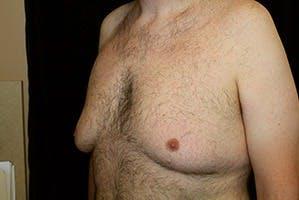 Gynecomastia Gallery - Patient 39248315 - Image 3
