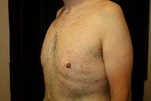 Gynecomastia Gallery - Patient 39248315 - Image 4