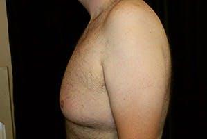 Gynecomastia Gallery - Patient 39248315 - Image 5