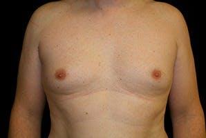 Gynecomastia Gallery - Patient 39248317 - Image 1