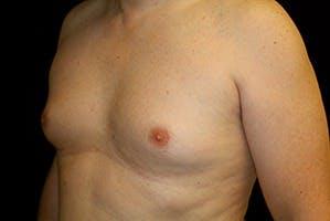 Gynecomastia Gallery - Patient 39248317 - Image 3