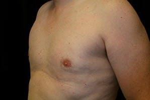 Gynecomastia Gallery - Patient 39248317 - Image 4