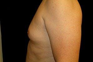 Gynecomastia Gallery - Patient 39248317 - Image 5