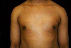 Gynecomastia Gallery - Patient 39248320 - Image 2