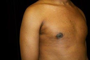 Gynecomastia Gallery - Patient 39248320 - Image 4