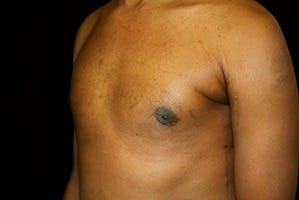 Gynecomastia Gallery - Patient 39248320 - Image 6
