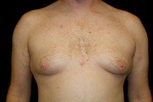 Gynecomastia Gallery - Patient 39248321 - Image 1