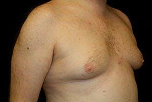 Gynecomastia Gallery - Patient 39248321 - Image 3