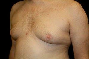 Gynecomastia Gallery - Patient 39248321 - Image 5