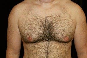 Gynecomastia Gallery - Patient 39248329 - Image 1