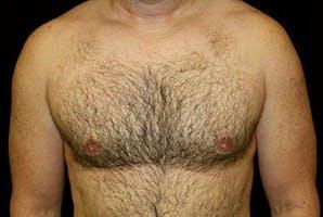 Gynecomastia Gallery - Patient 39248329 - Image 2
