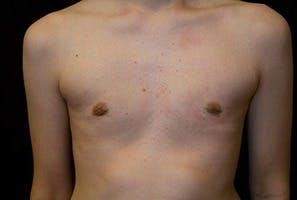 Gynecomastia Gallery - Patient 39248337 - Image 2