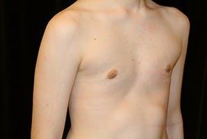 Gynecomastia Gallery - Patient 39248337 - Image 4