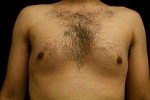 Gynecomastia Gallery - Patient 39248338 - Image 1
