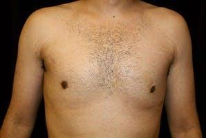 Gynecomastia Gallery - Patient 39248338 - Image 2